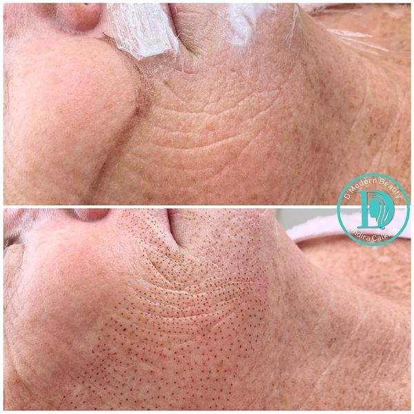 fibroblast skin tightening orange county