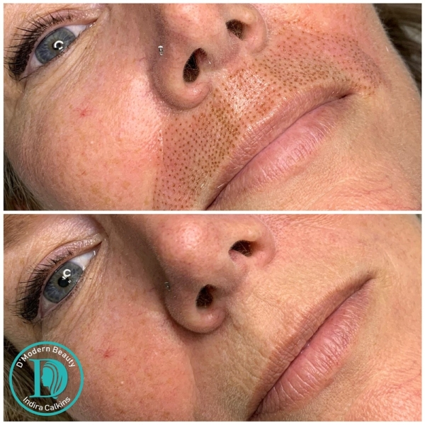 fibroblast orange county before and after