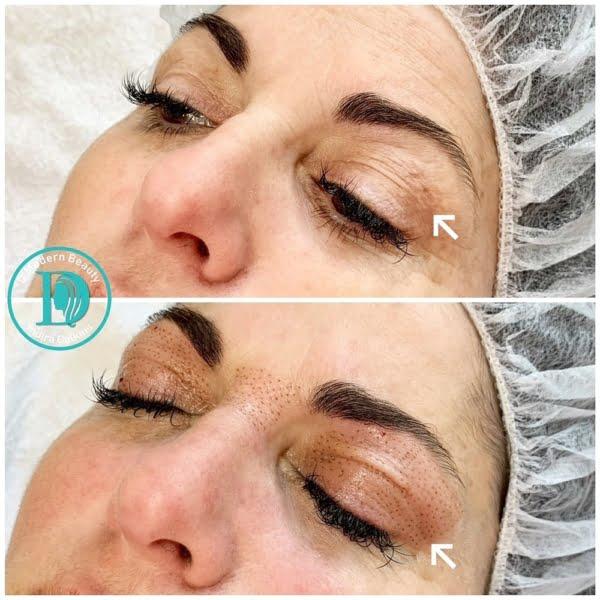fibroblast skin tightening oc