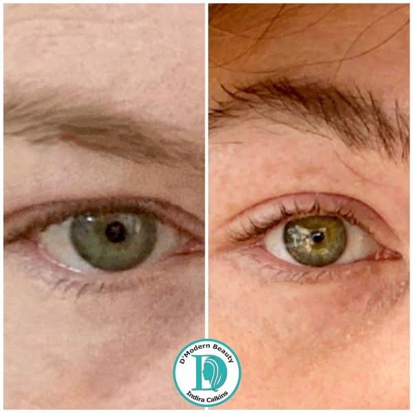 plasma fibroblast skin rejuvenation orange county