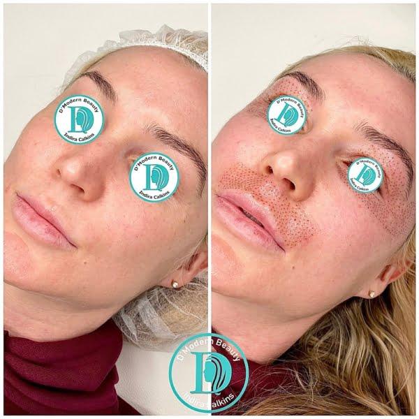 Fibroblast Skin Tightening Eyes and Upper Lip